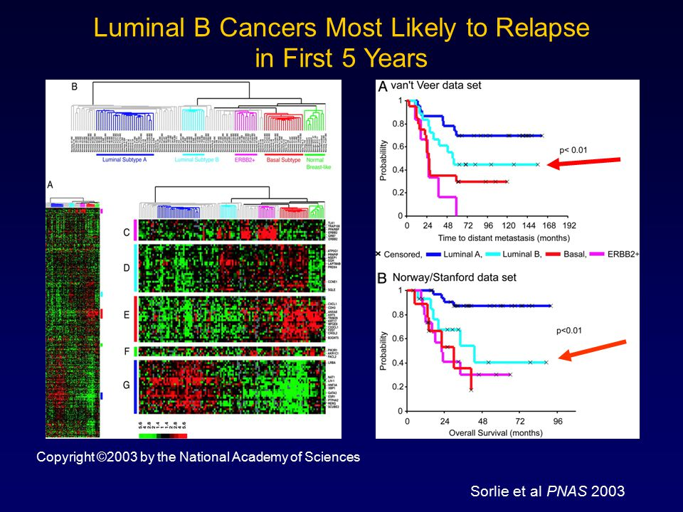Luminal B Cancers Most Likely to Relapse