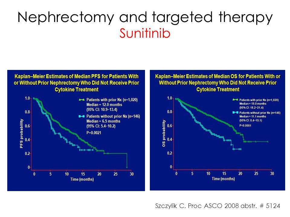 Nephrectomy and targeted therapy Sunitinib