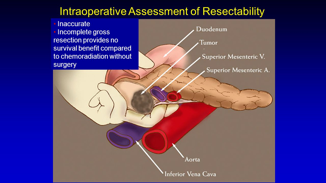Intraoperative Assessment of Resectability