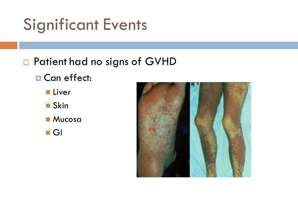 Significant Events Patient had no signs of GVHD Can effect: Liver Skin