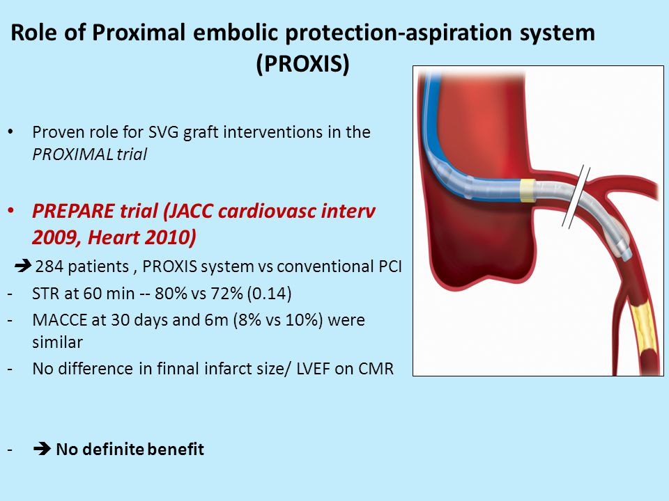 Role of Proximal embolic protection-aspiration system (PROXIS)