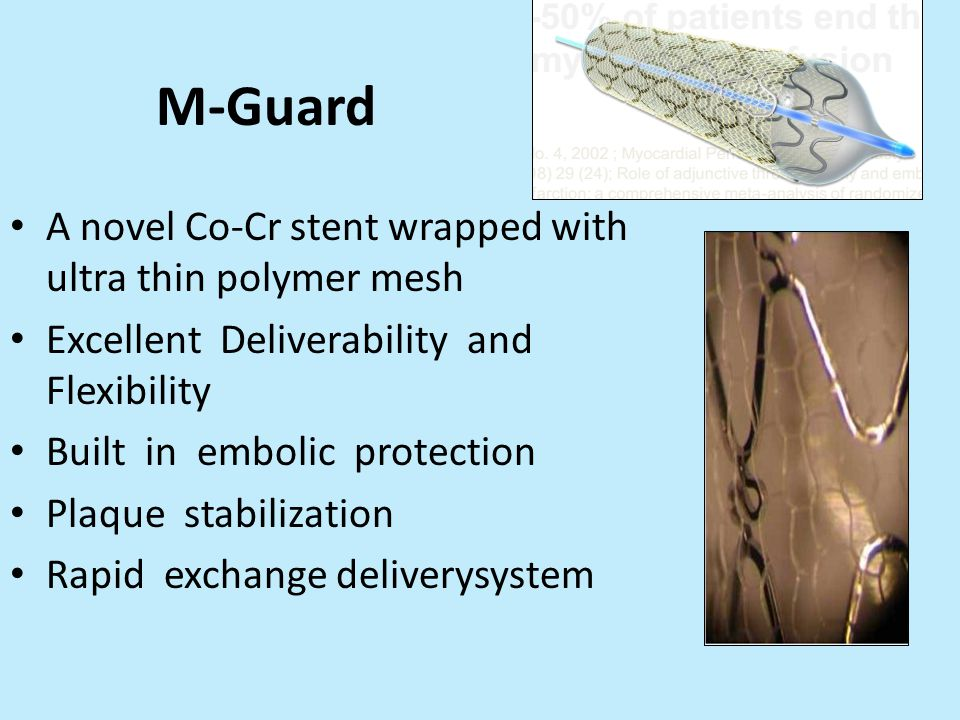 M-Guard A novel Co-Cr stent wrapped with ultra thin polymer mesh