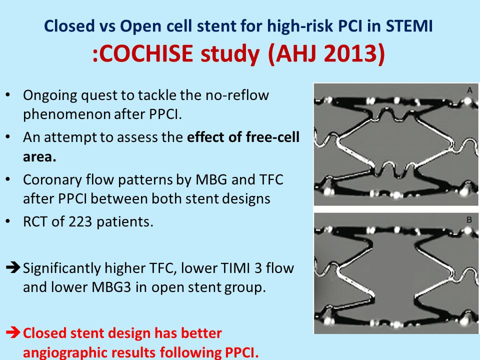 Closed vs Open cell stent for high-risk PCI in STEMI :COCHISE study (AHJ 2013)