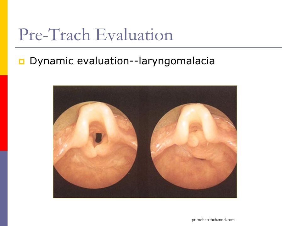 Pre-Trach Evaluation Dynamic evaluation--laryngomalacia