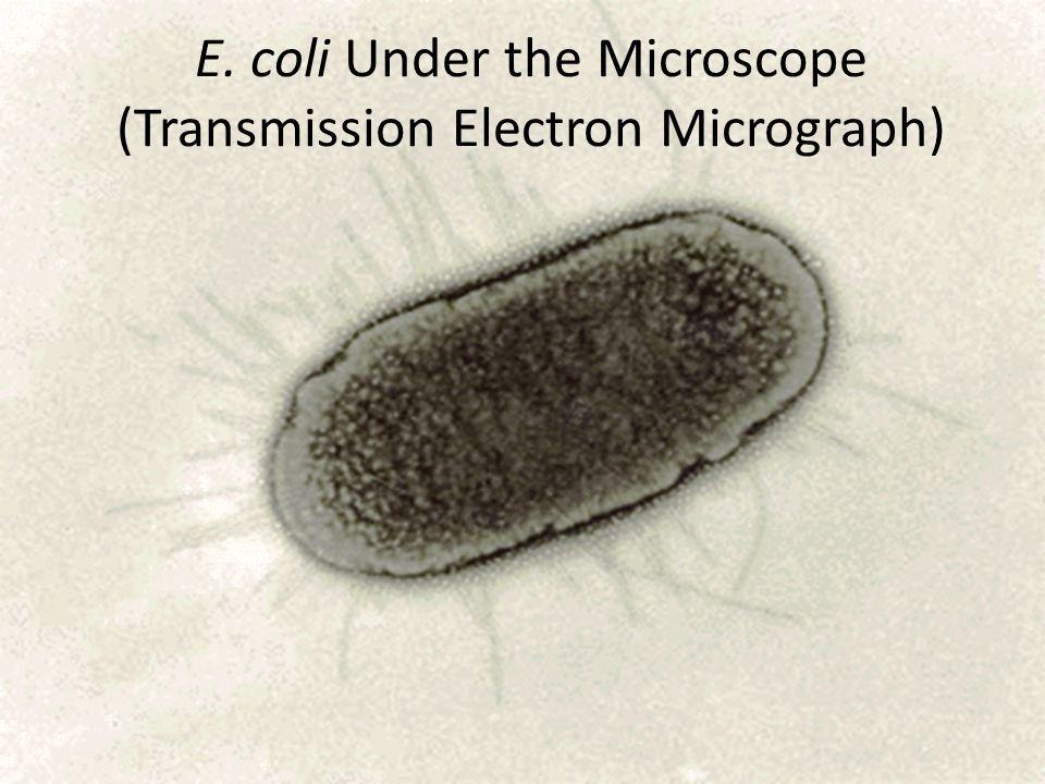 E. coli Under the Microscope (Transmission Electron Micrograph)