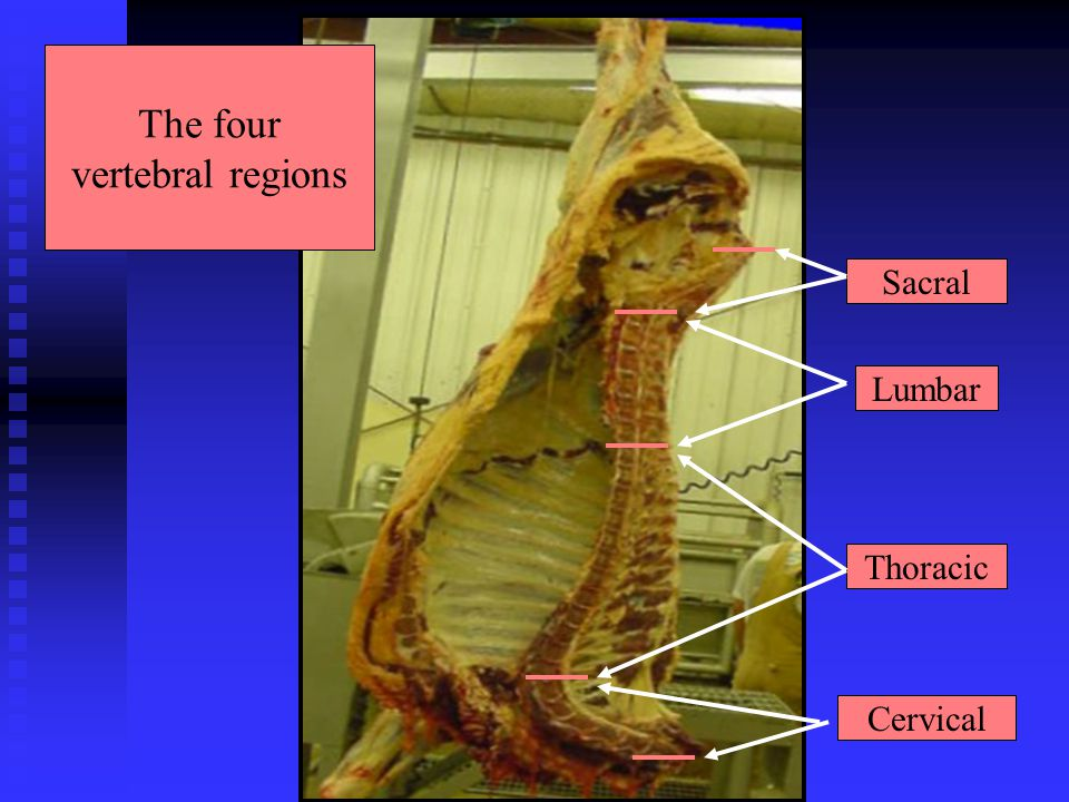 The four vertebral regions Sacral Lumbar Thoracic Cervical