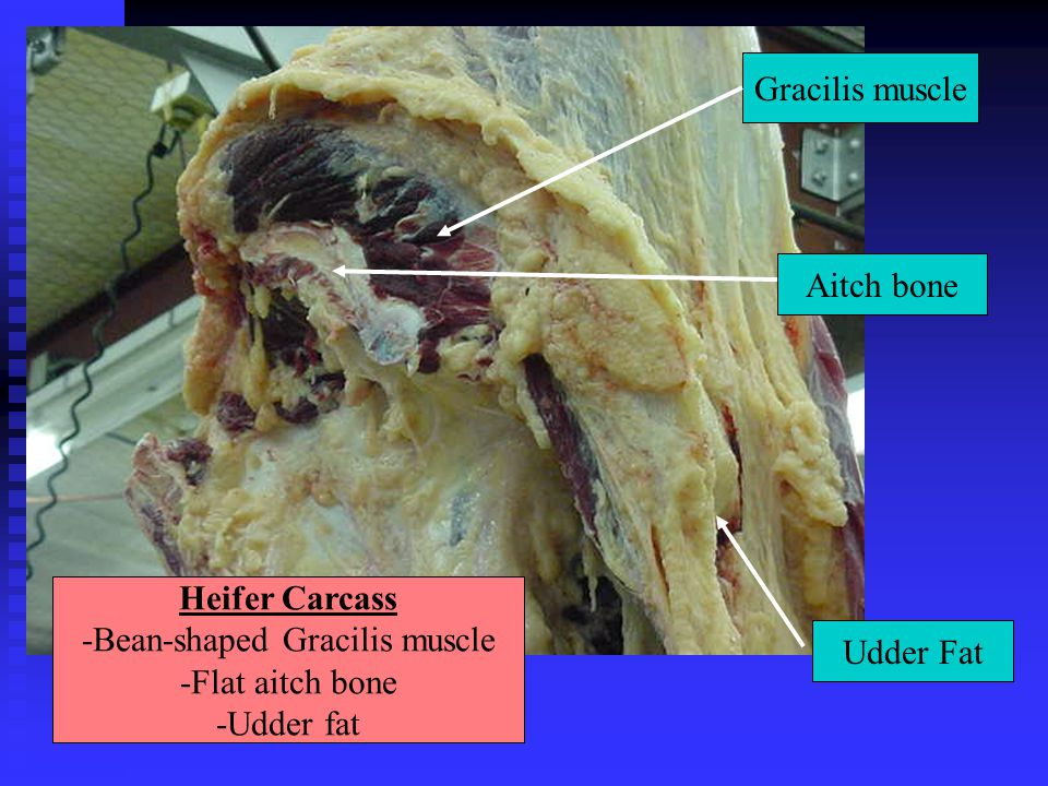 -Bean-shaped Gracilis muscle