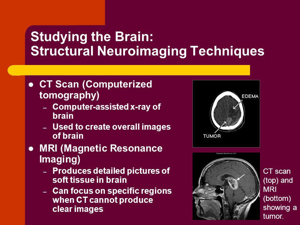 Studying the Brain: Structural Neuroimaging Techniques