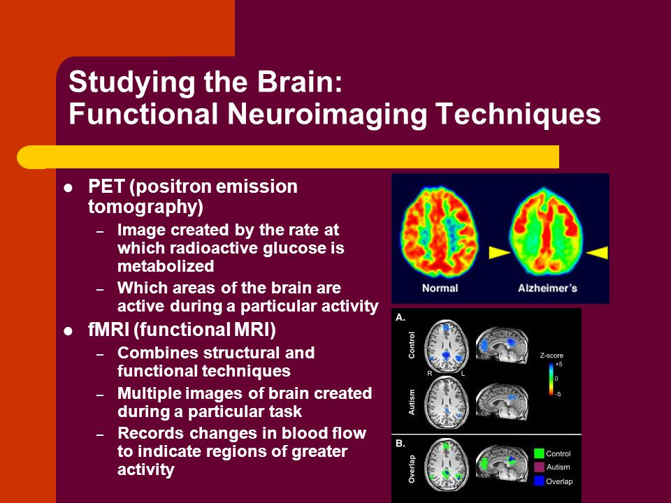 Studying the Brain: Functional Neuroimaging Techniques