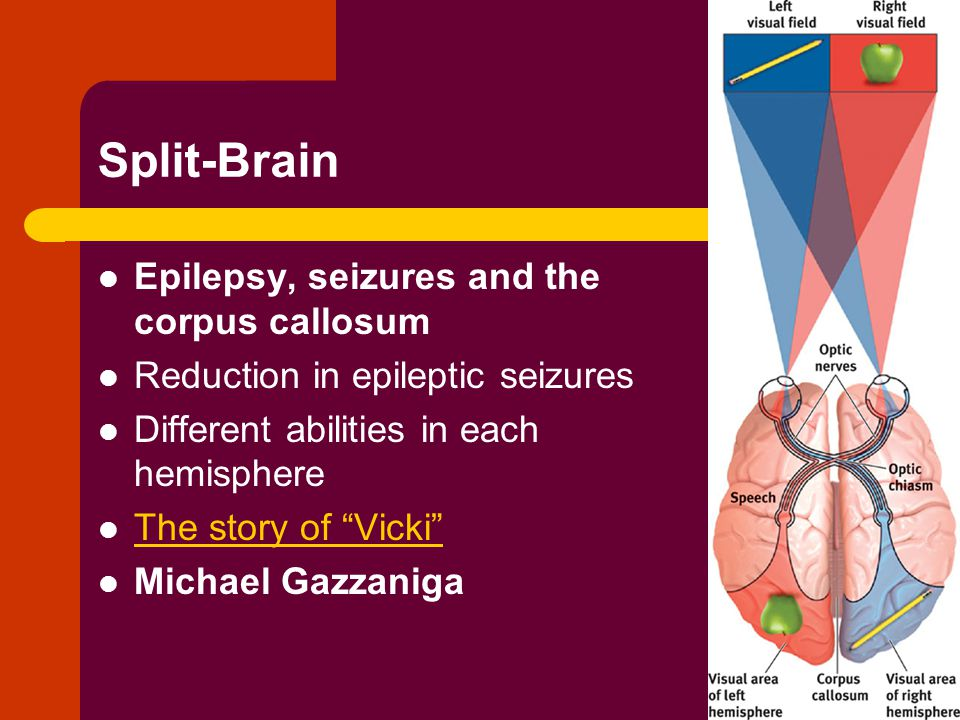 Split-Brain Epilepsy, seizures and the corpus callosum