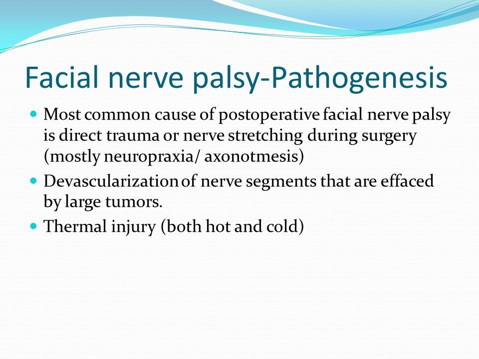 Facial nerve palsy-Pathogenesis
