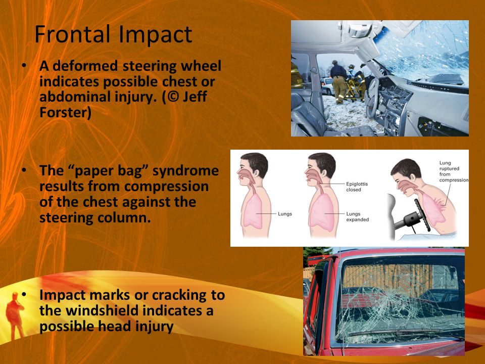 Frontal Impact A deformed steering wheel indicates possible chest or abdominal injury. (© Jeff Forster)