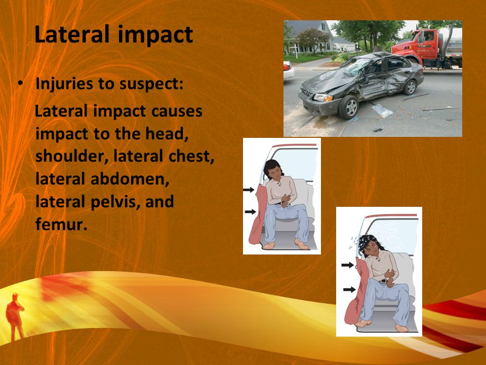 Lateral impact Injuries to suspect: