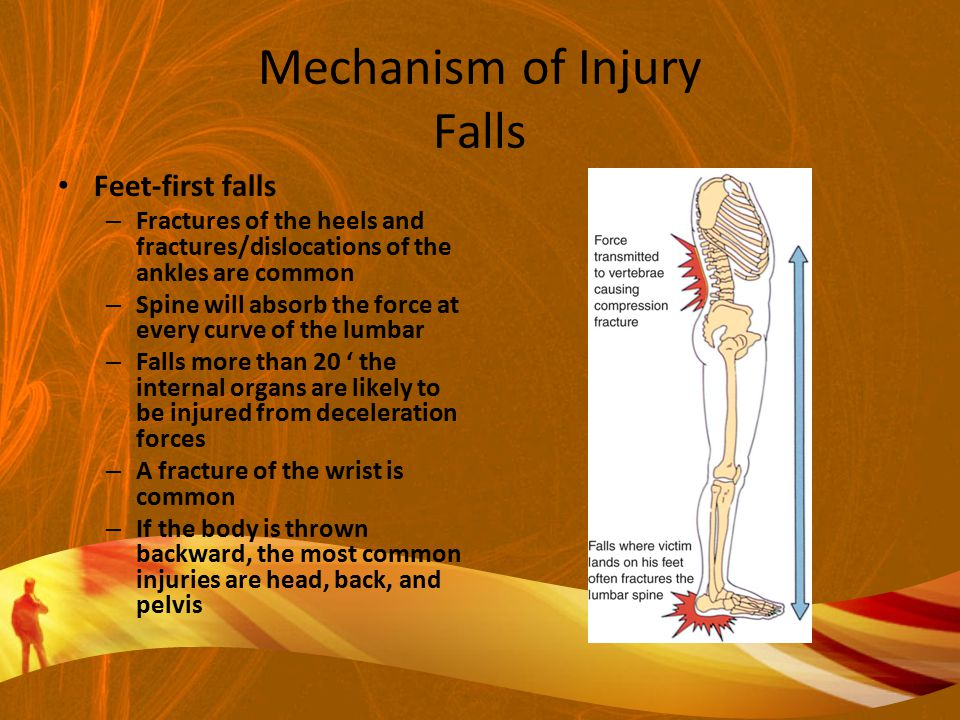 Mechanism of Injury Falls