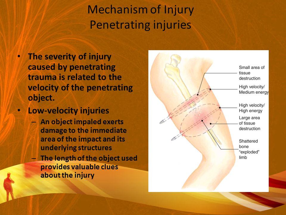 Mechanism of Injury Penetrating injuries