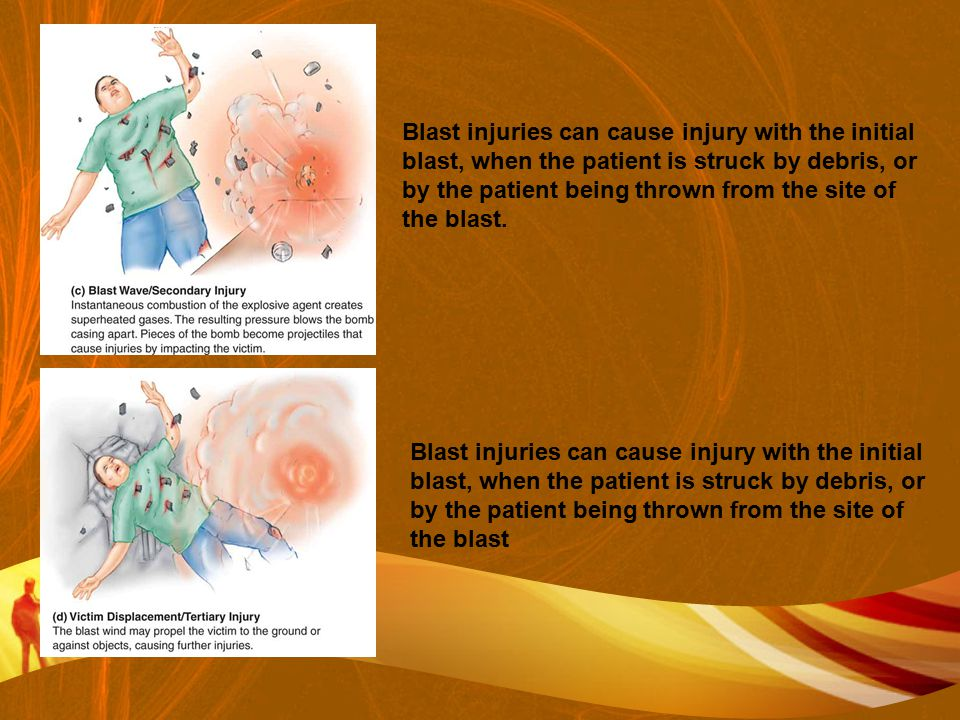 Blast injuries can cause injury with the initial blast, when the patient is struck by debris, or by the patient being thrown from the site of the blast.