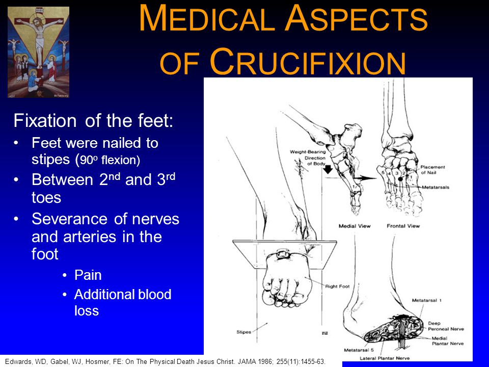 MEDICAL ASPECTS OF CRUCIFIXION