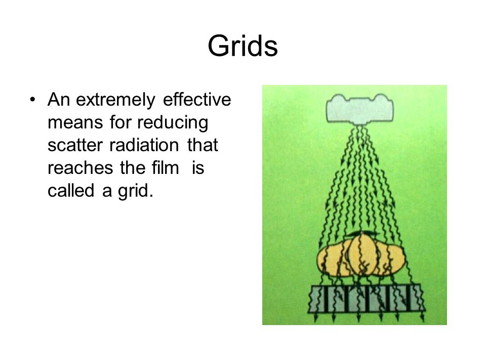 Grids An extremely effective means for reducing scatter radiation that reaches the film is called a grid.