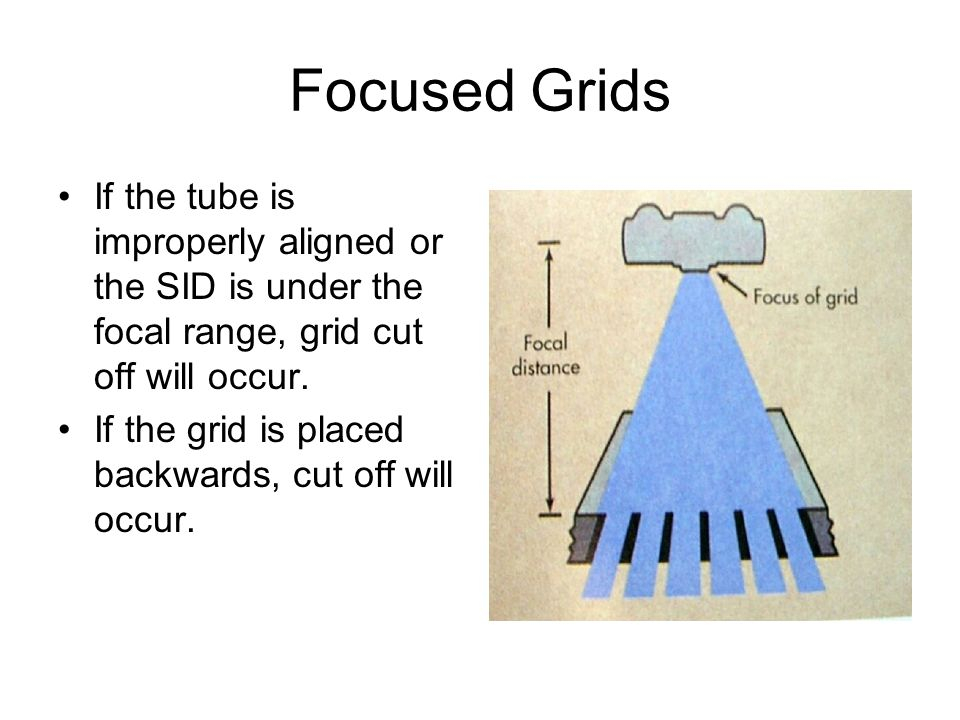 Focused Grids If the tube is improperly aligned or the SID is under the focal range, grid cut off will occur.