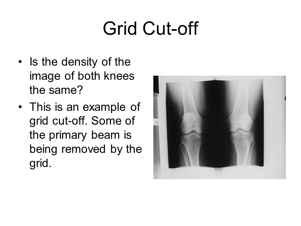 Grid Cut-off Is the density of the image of both knees the same