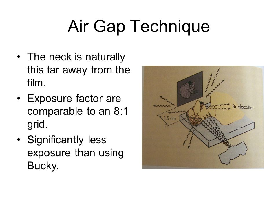Air Gap Technique The neck is naturally this far away from the film.