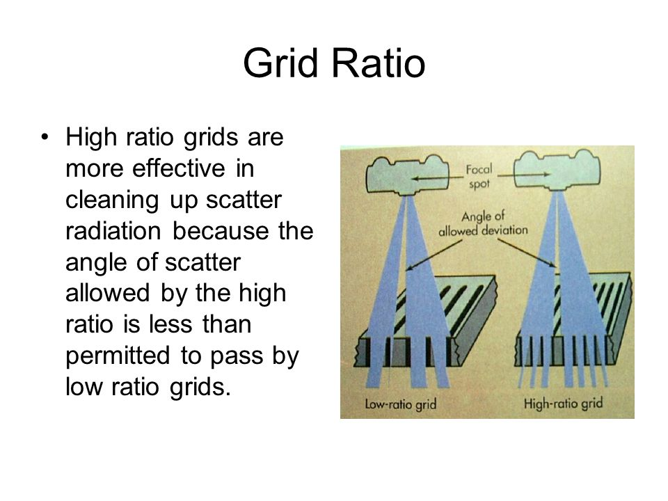 Grid Ratio