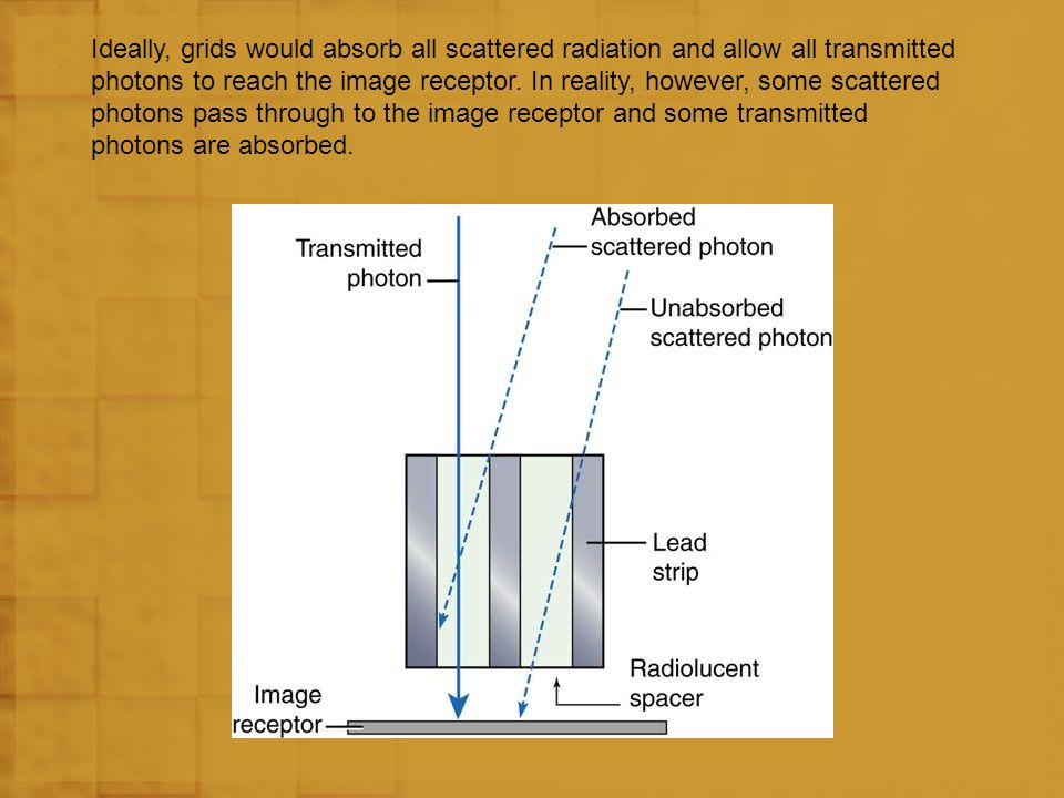 Ideally, grids would absorb all scattered radiation and allow all transmitted photons to reach the image receptor.
