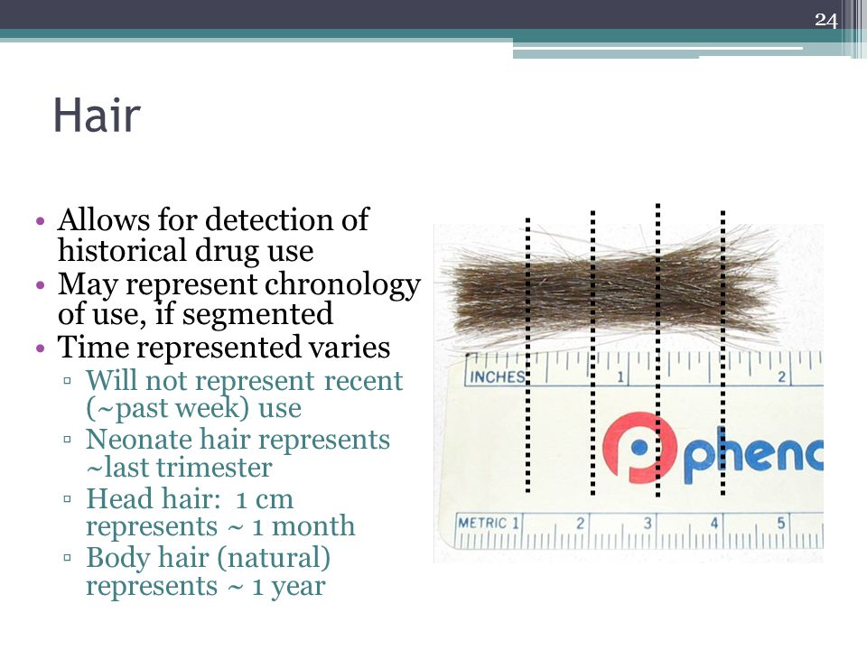 Hair Allows for detection of historical drug use