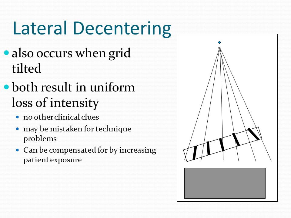 Lateral Decentering also occurs when grid tilted