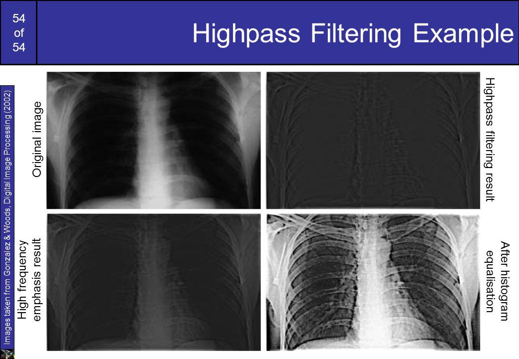 Highpass Filtering Example