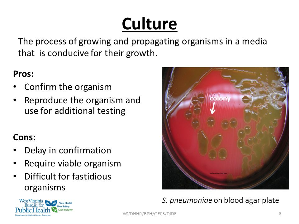 Culture The process of growing and propagating organisms in a media that is conducive for their growth.