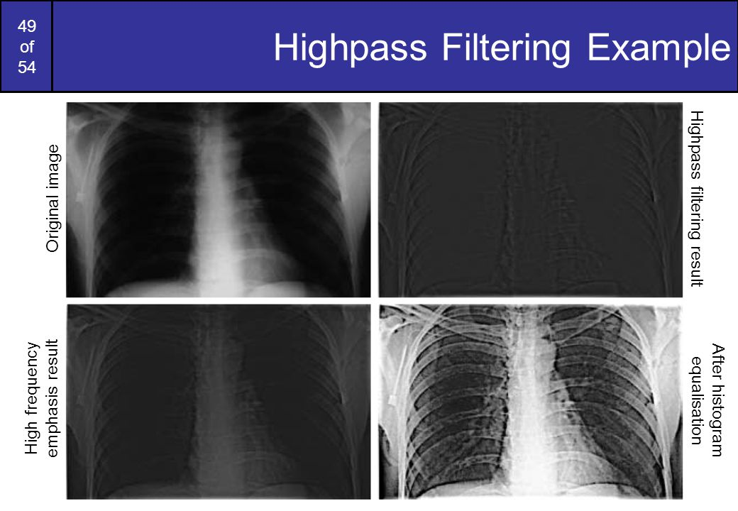 Highpass Filtering Example