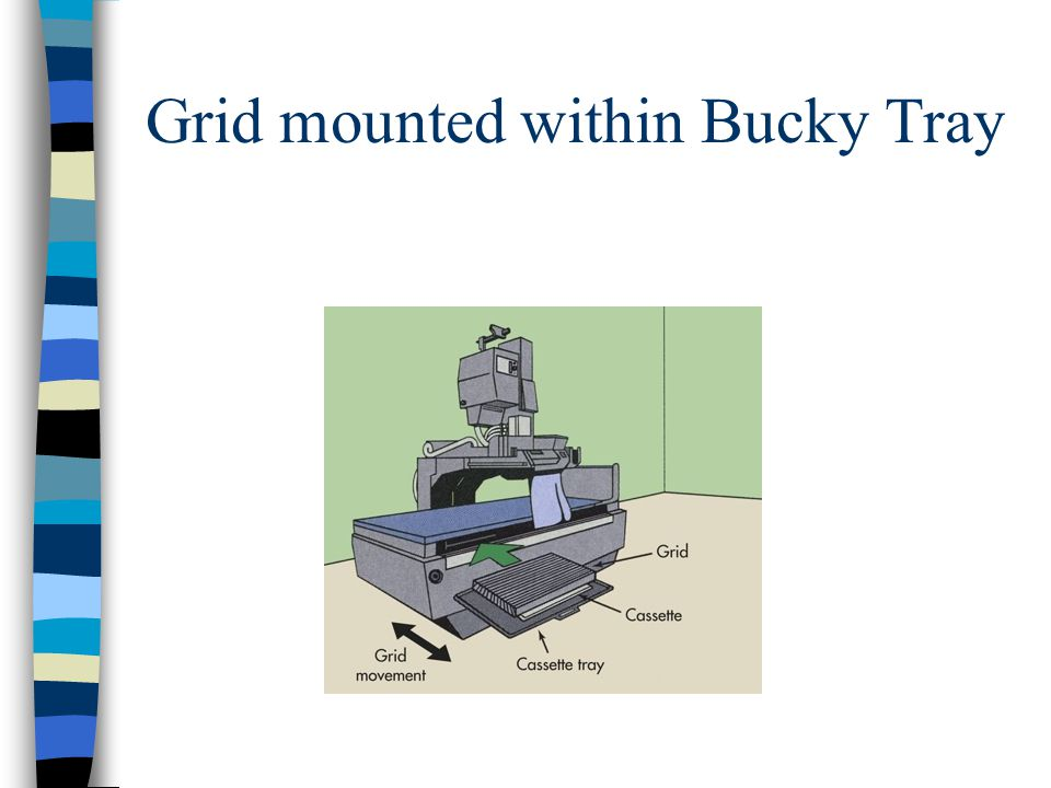 Grid mounted within Bucky Tray