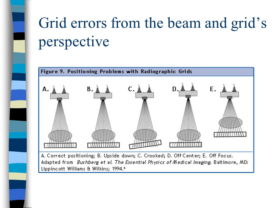 Grid errors from the beam and grid's perspective