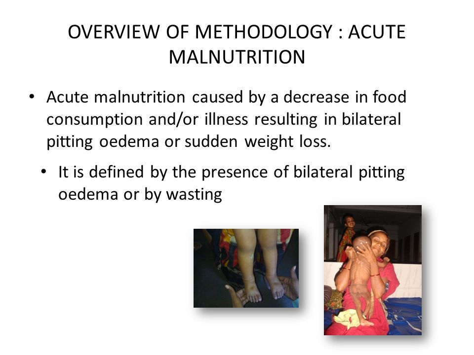 OVERVIEW OF METHODOLOGY : ACUTE MALNUTRITION