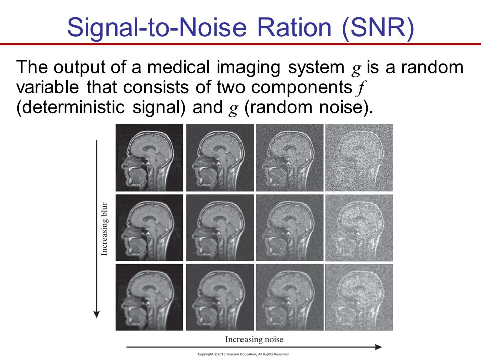 Signal-to-Noise Ration (SNR)