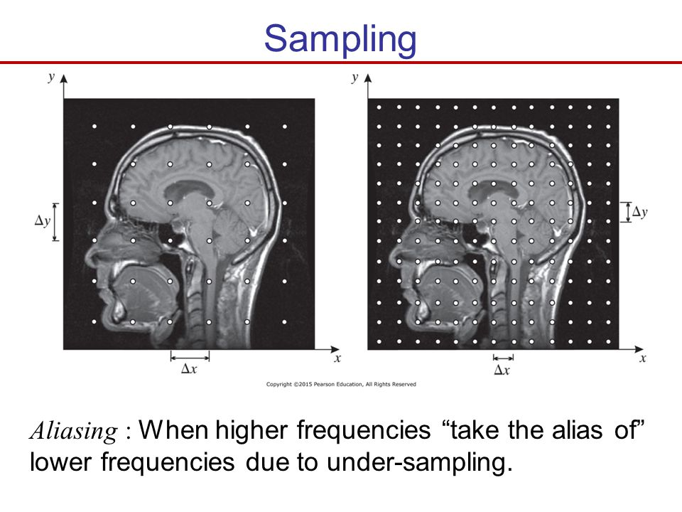 Sampling Aliasing : When higher frequencies take the alias of lower frequencies due to under-sampling.