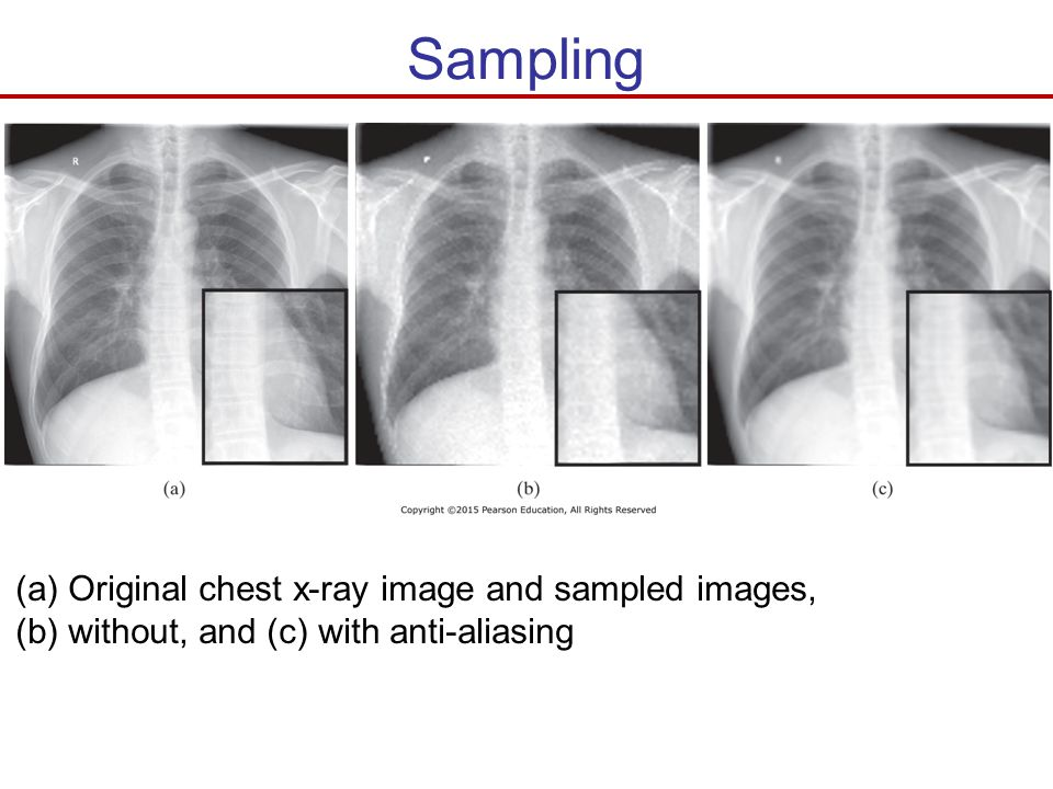 Sampling Original chest x-ray image and sampled images,