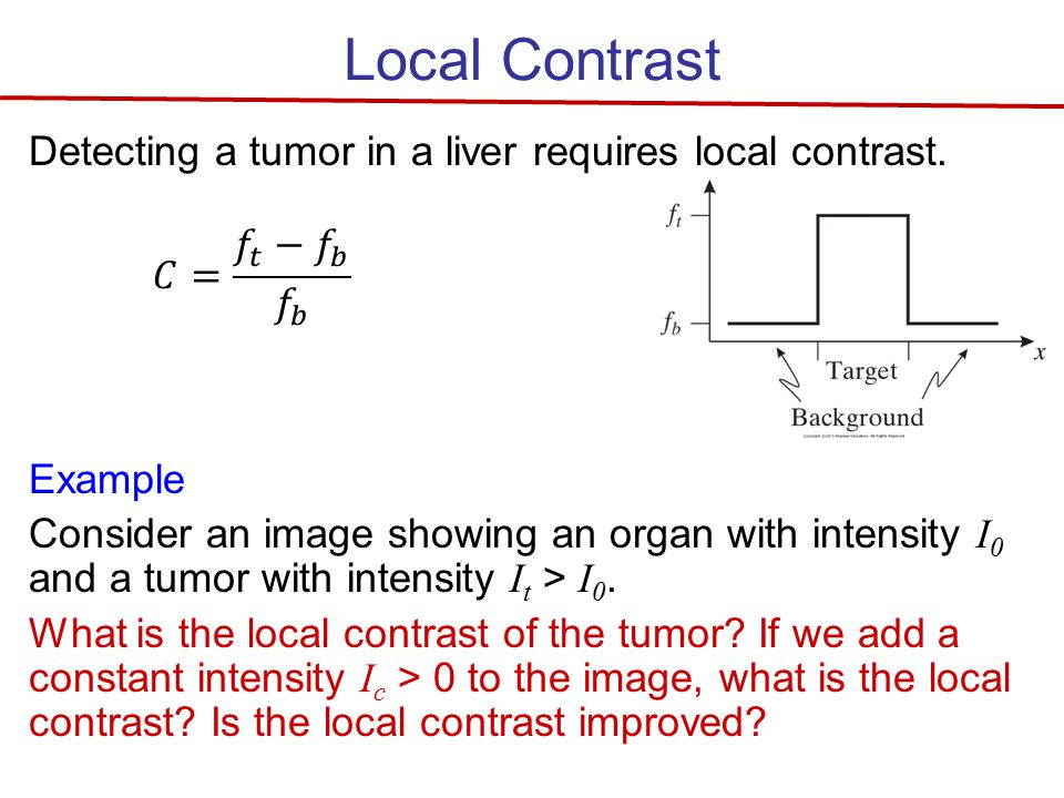 Local Contrast Detecting a tumor in a liver requires local contrast.