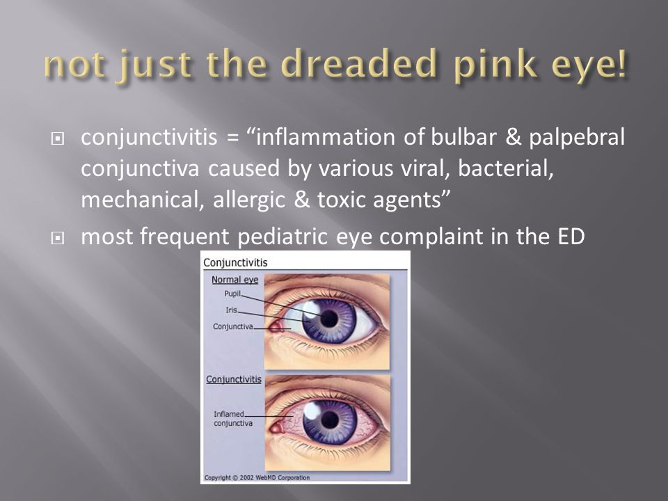 not just the dreaded pink eye!