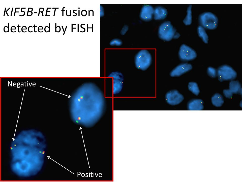 KIF5B-RET fusion detected by FISH Negative Positive
