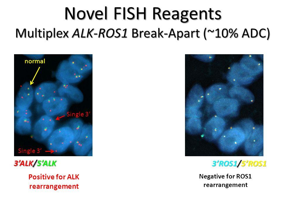 Positive for ALK rearrangement Negative for ROS1 rearrangement