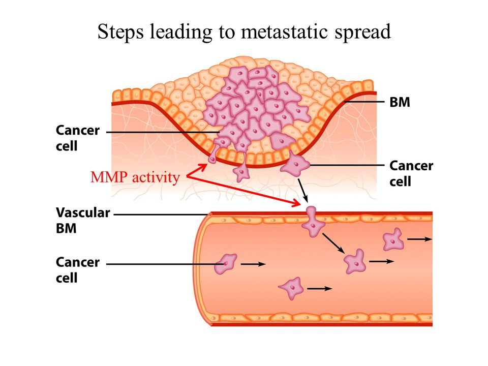 Steps leading to metastatic spread