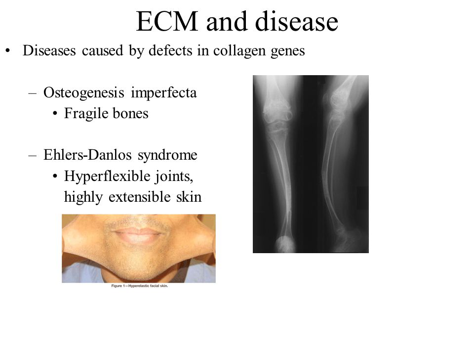 ECM and disease Diseases caused by defects in collagen genes