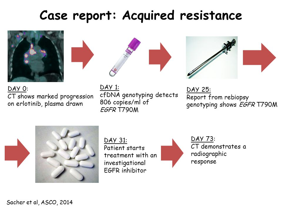 Case report: Acquired resistance