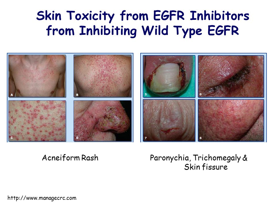 Skin Toxicity from EGFR Inhibitors from Inhibiting Wild Type EGFR