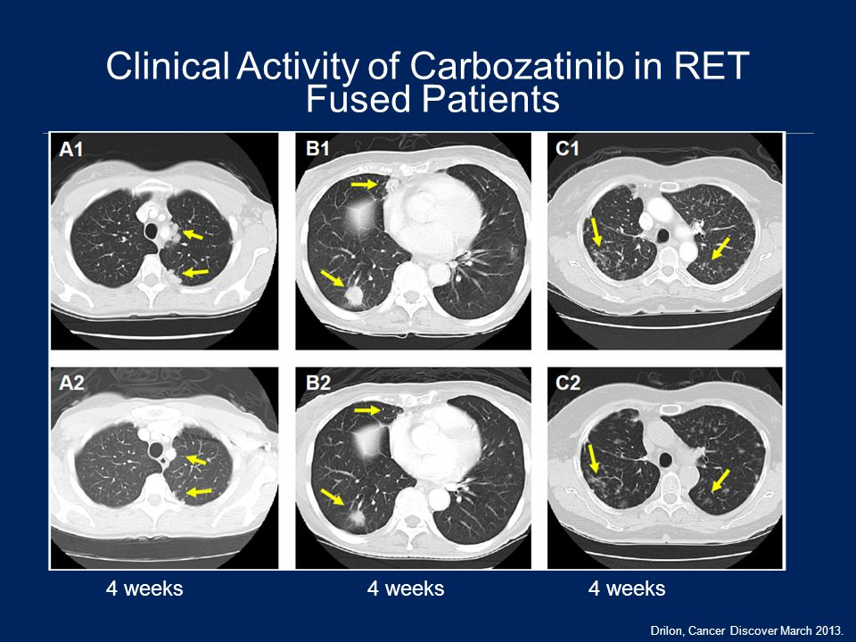 Clinical Activity of Carbozatinib in RET Fused Patients