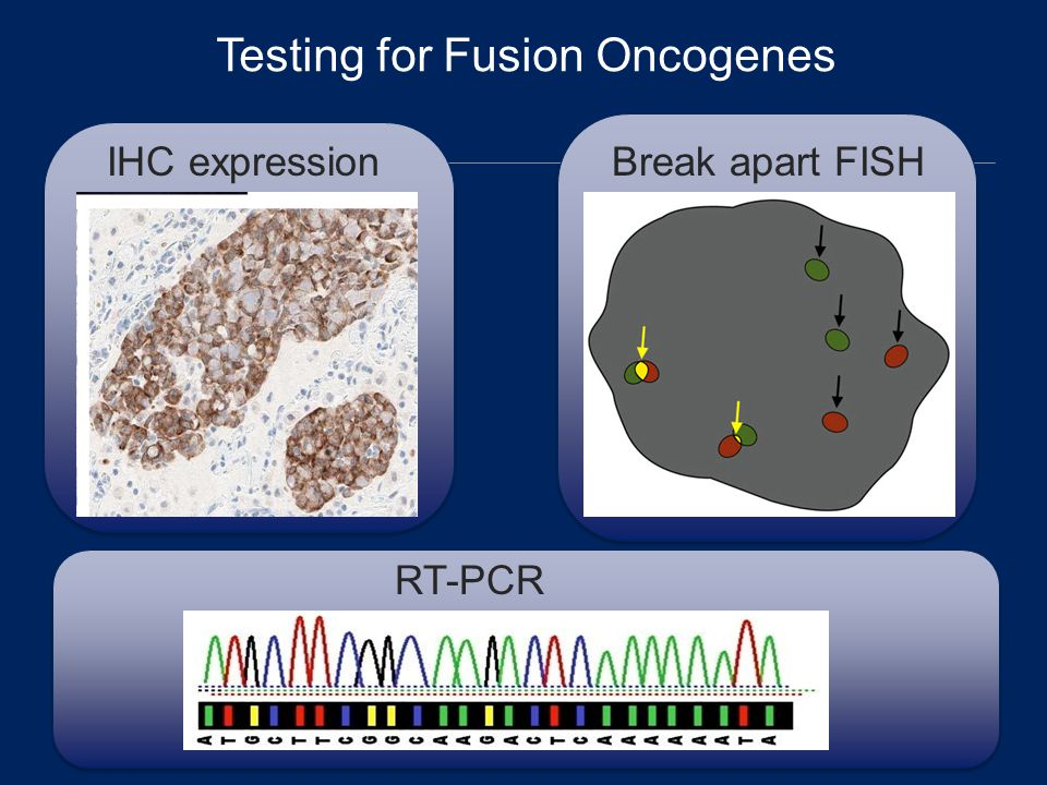 Testing for Fusion Oncogenes