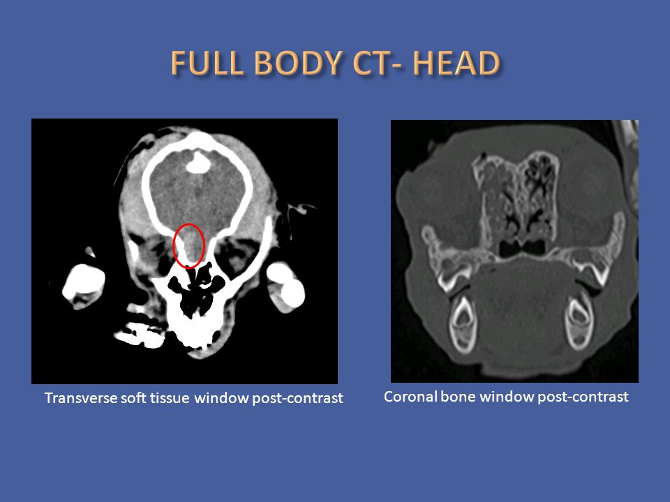 FULL BODY CT- HEAD Transverse soft tissue window post-contrast