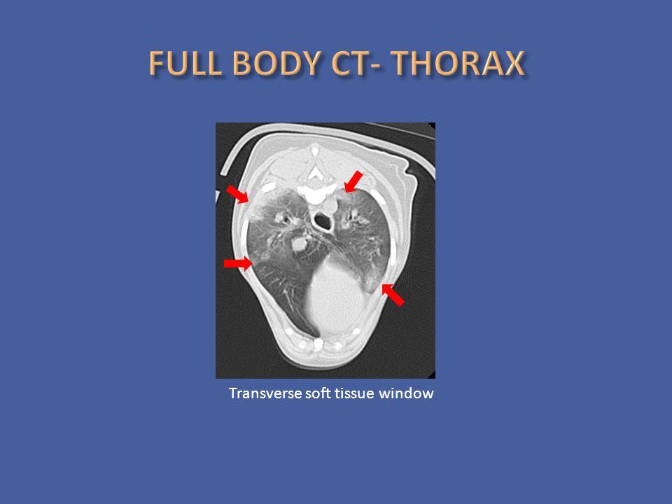 Transverse soft tissue window